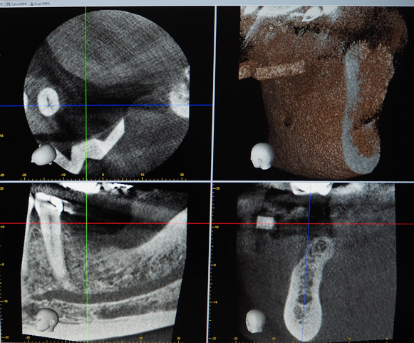 Figure 2: A CBCT scan was taken two weeks prior to surgery