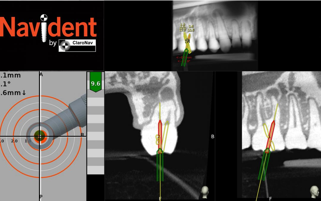 Navident obtains regulatory approvals for guiding root canal treatment